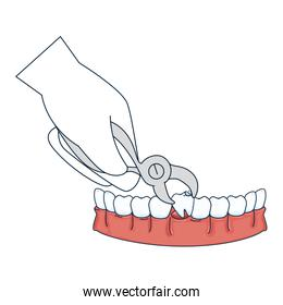 dentist extracting tooth with pliers
