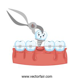 human teeth with pliers extracting implant