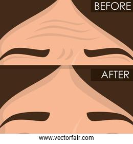 woman before and after skin treatment